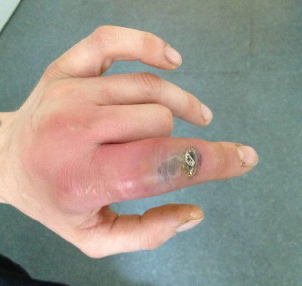 Phlegmon, une infection sous la peau